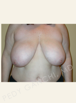 Female Breast Reduction